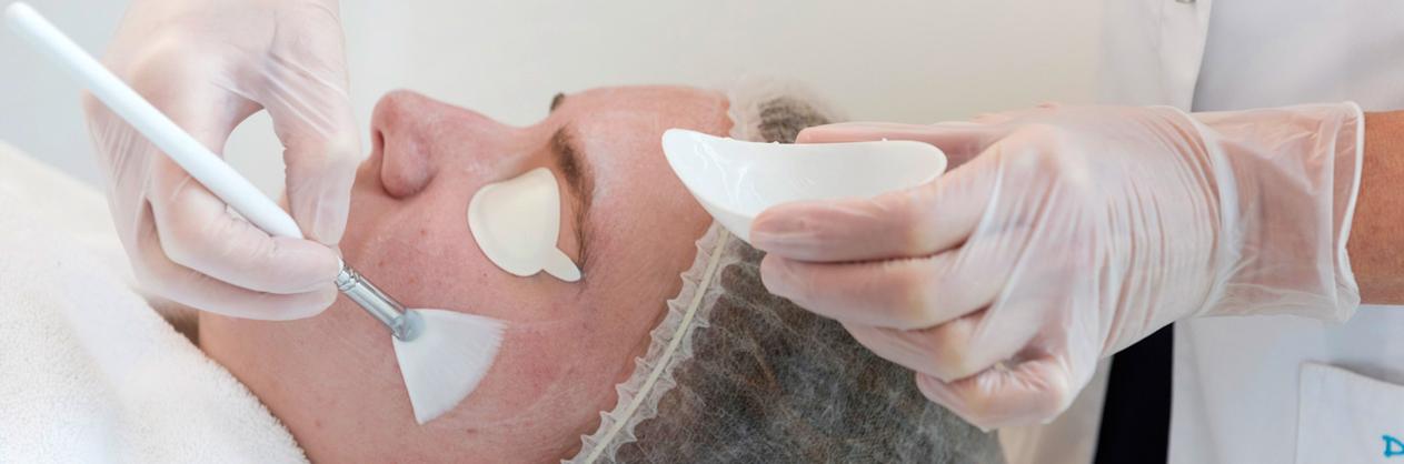 Traiter les cicatrices d'acné rapidement