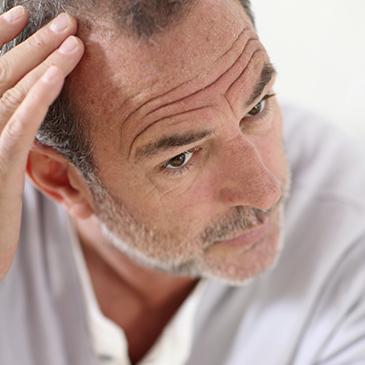 Greffe de cheveux naturelle