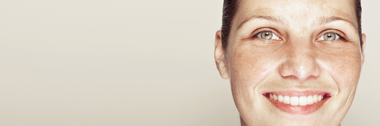 Masque de grossesse / Melasma