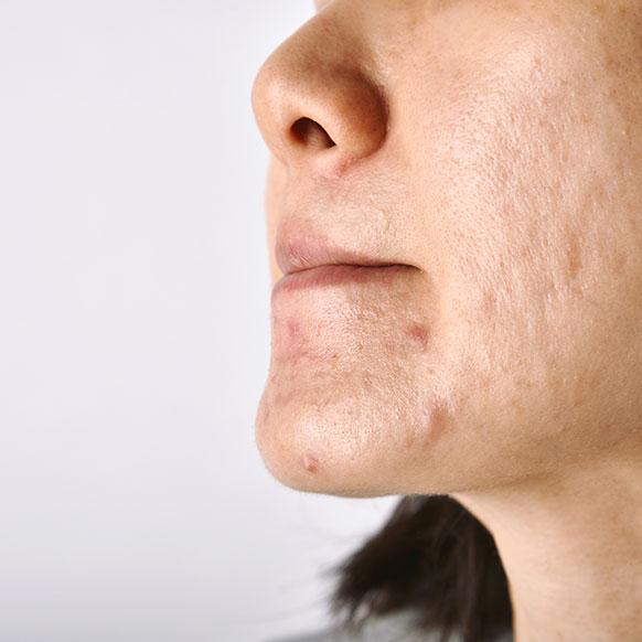 Cicatrices d'acné en creux