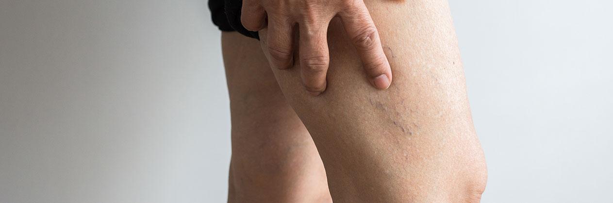 Variscosités des jambes